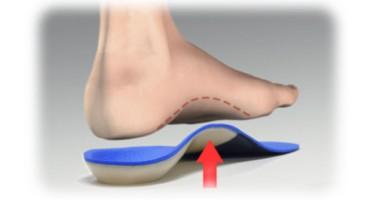 Beneficios de usar plantillas ortopédicas